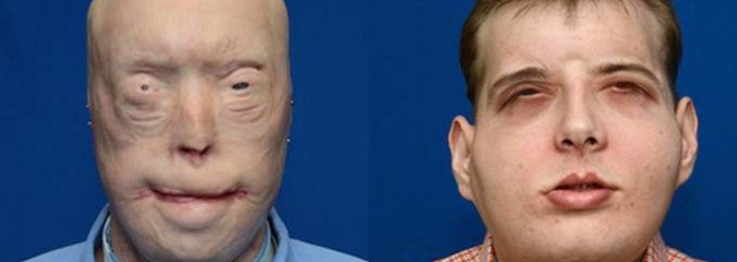 Firefighter Makes Medical History Receiving Most Extensive Facial Transplant To Date