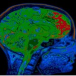 Brain Scans Show Conservatives and Liberals View The World Differently: Here's How