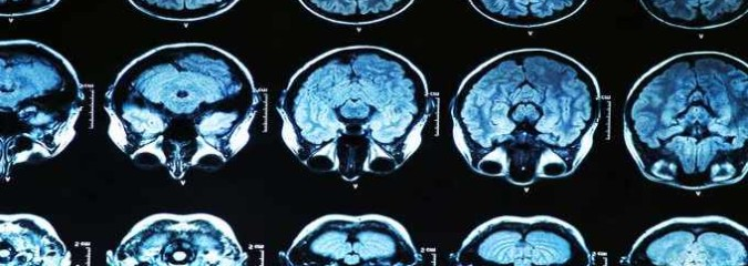 Your Brain Can Be Trained To Regulate Negative Emotions, Study Shows