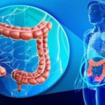 Crohn's Disease: Experts May Have Finally Found The Cause Of This Chronic Disease