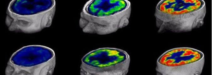 Brain Scans Probe the Limits of Consciousness