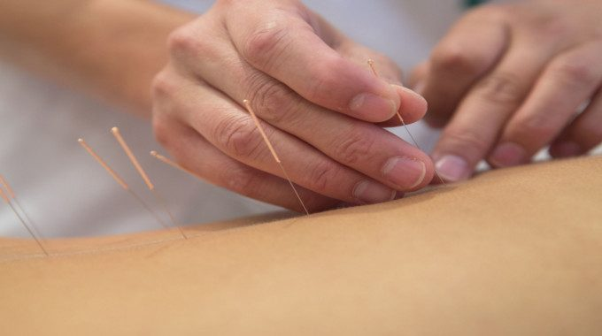 This Is What Happens to Your Body When You Try Acupuncture